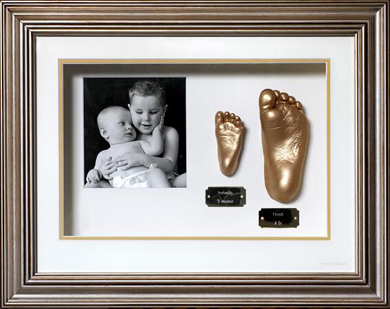 Avgjutning i gips på två barns fötter